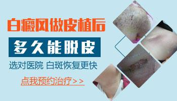 15岁男孩脸部长白斑照UVB能治得好吗,要配合什么药物
