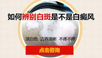 青少年脸部有圆形白斑用308激光治好后复发几率多大