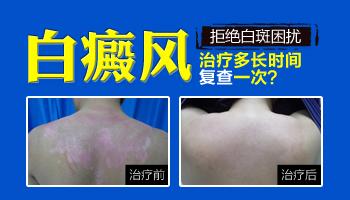青少年腰部有白斑抹补骨脂能治疗好吗,多久能好